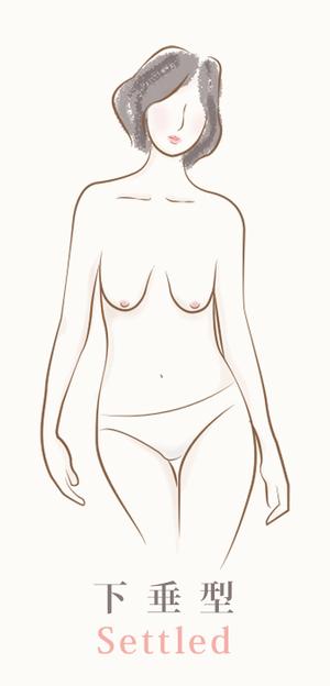 四種胸型示意圖-4